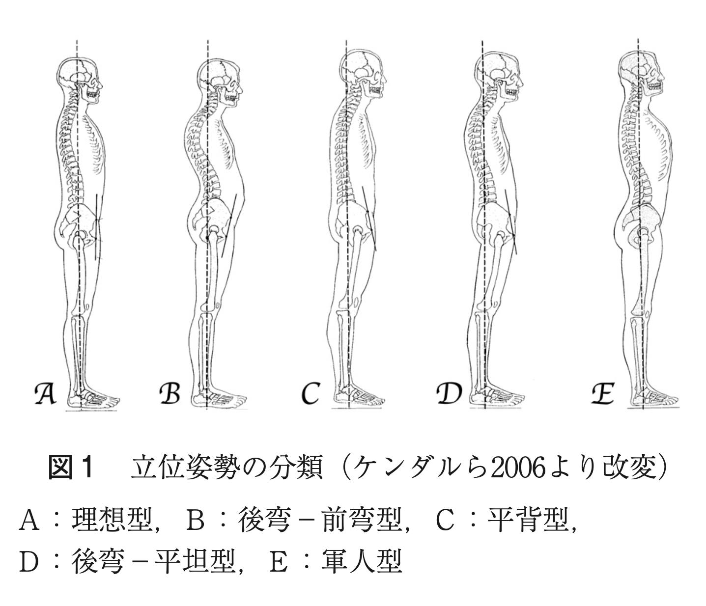 5つの姿勢タイプ